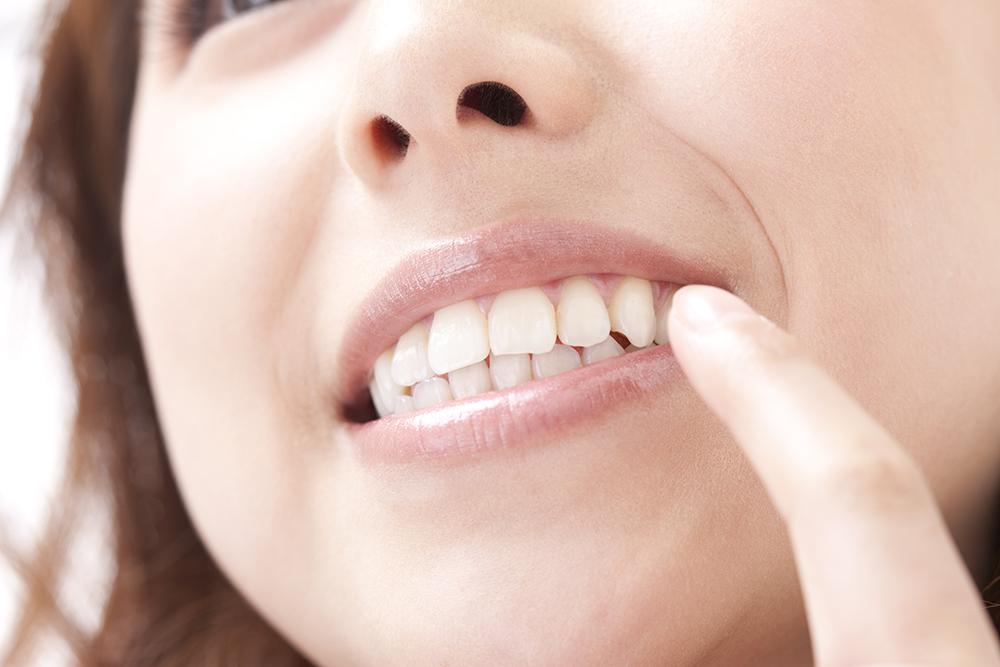 矯正対象となる歯のパターン